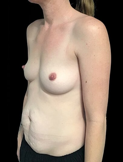 Brisbane Abdominoplasty And Breast Augmentation Mummy Makeover Clinic SK 5
