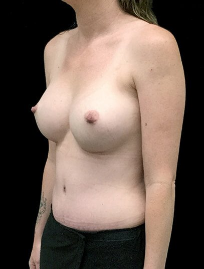 Brisbane Abdominoplasty And Breast Augmentation Mummy Makeover Clinic SK 6