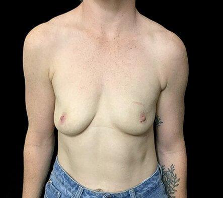 Brisbane Breast Augmenation Dr Sharp 300cc Anatomical High Profile Mentor RP 1