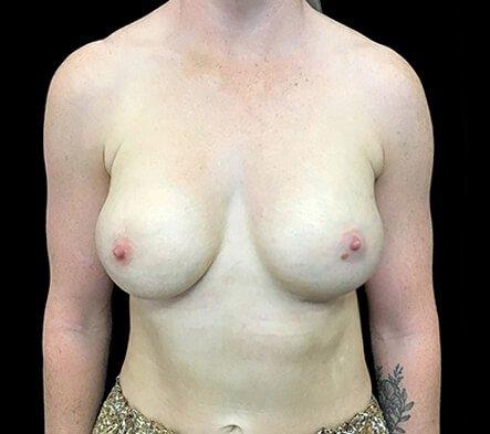 Brisbane Breast Augmenation Dr Sharp 300cc Anatomical High Profile Mentor RP 1b