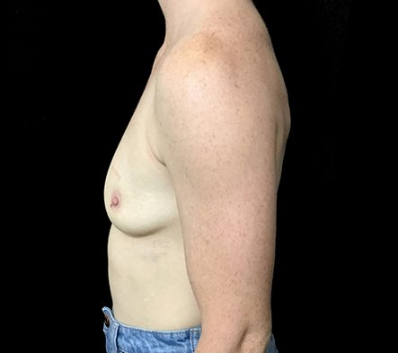 Brisbane Breast Augmenation Dr Sharp 300cc Anatomical High Profile Mentor RP 2 Copy