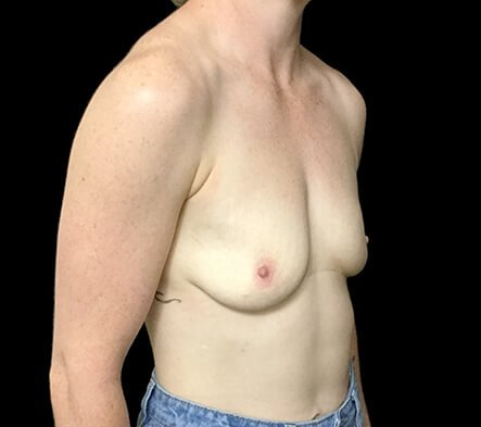 Brisbane Breast Augmenation Dr Sharp 300cc Anatomical High Profile Mentor RP 5 Copy