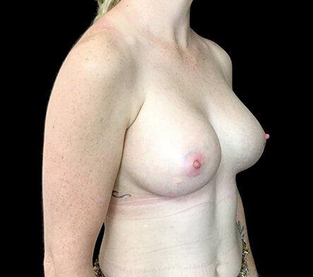 Brisbane Breast Augmenation Dr Sharp 300cc Anatomical High Profile Mentor RP 6 Copy