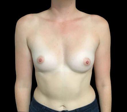 Brisbane Breast Augmentation 295cc Motiva Round Dr Sharp 1 CL