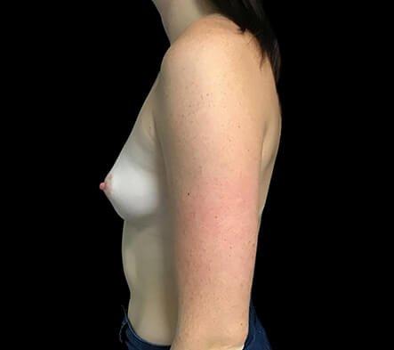 Brisbane Breast Augmentation 295cc Motiva Round Dr Sharp 3 CL