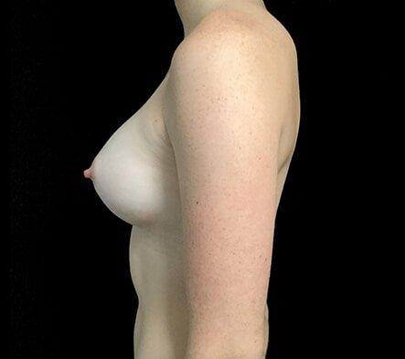 Brisbane Breast Augmentation 295cc Motiva Round Dr Sharp 4 CL