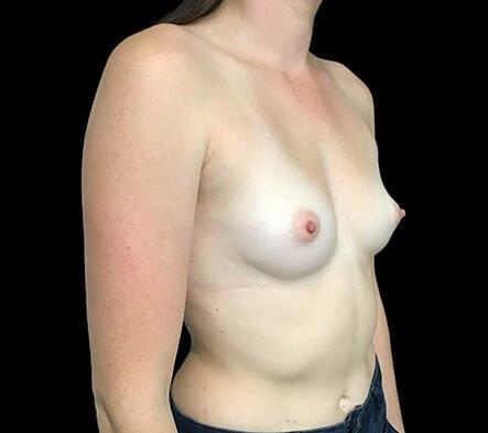 Brisbane Breast Augmentation 295cc Motiva Round Dr Sharp 5 CL