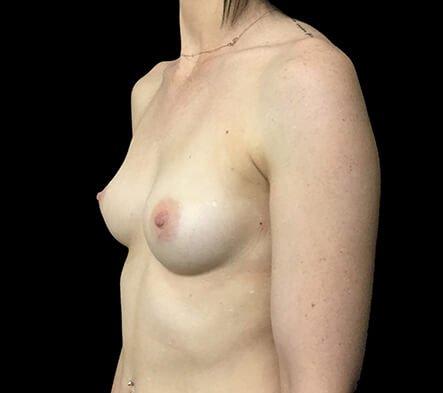 Brisbane Breast Augmentation Surgeon 275cc Motiva Ergonomix Full ProfileTB 5