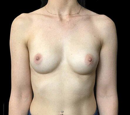 Brisbane Breast Augmentation Surgeon 275cc Motiva Ergonomix Full Profile TB 1