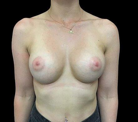 Brisbane Breast Augmentation Surgeon 275cc Motiva Ergonomix Full Profile TB 2