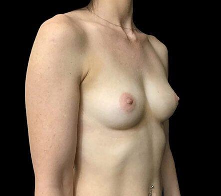 Brisbane Breast Augmentation Surgeon 275cc Motiva Ergonomix Full Profile TB 3