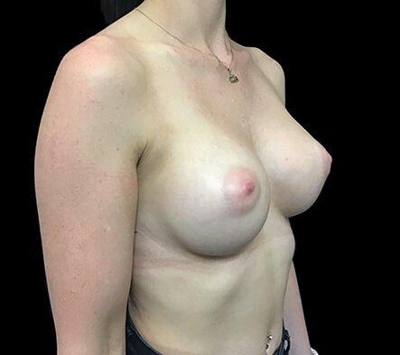 Brisbane Breast Augmentation Surgeon 275cc Motiva Ergonomix Full Profile TB 3b