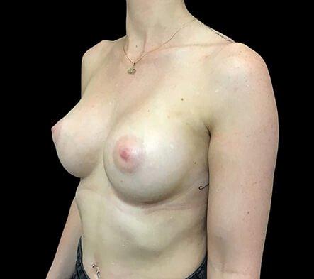 Brisbane Breast Augmentation Surgeon 275cc Motiva Ergonomix Full Profile TB 6