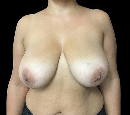 Brisbane Breast Reduction Dr David Sharp Surgeon TP 1