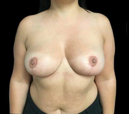 Brisbane Breast Reduction Dr David Sharp Surgeon TP 2