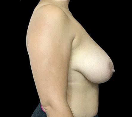 Brisbane Breast Reduction Dr David Sharp Surgeon TP 3