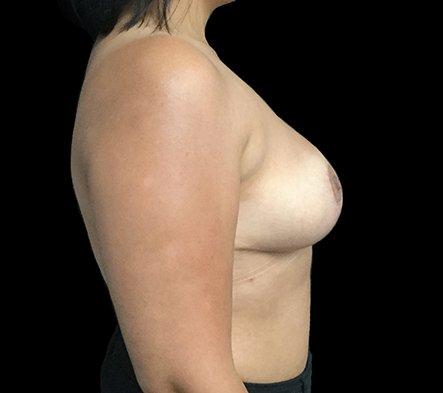 Brisbane Breast Reduction Dr David Sharp Surgeon TP 4