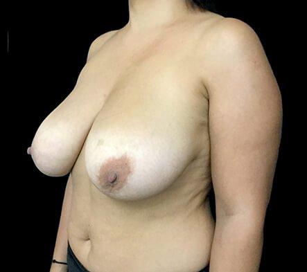 Brisbane Breast Reduction Dr David Sharp Surgeon TP 5