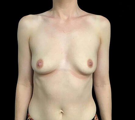 Dr Sharp Breast Augmentation 345cc Anatomical High Profile 1 KS