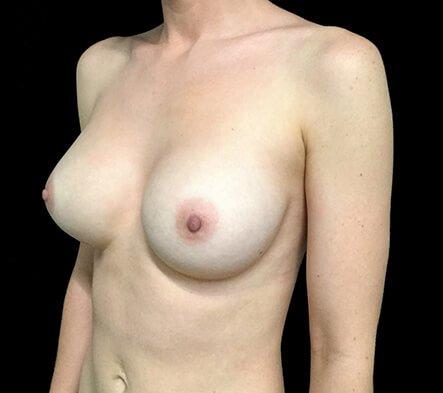Dr Sharp Breast Augmentation 345cc Anatomical High Profile Implants 3b KS