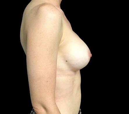 Dr Sharp Breast Augmentation 345cc Anatomical High Profile Implants 6 KS