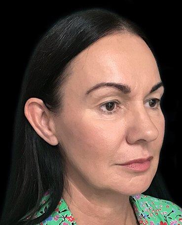 Dr Sharp Mini Facelift S Lift Plastic Surgeon Blepharoplasty Eyelids 1