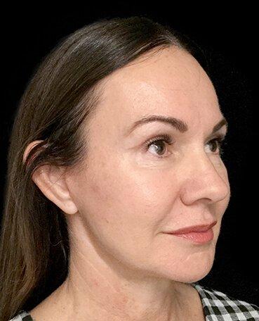 Dr Sharp Mini Facelift S Lift Plastic Surgeon Blepharoplasty Eyelids 2