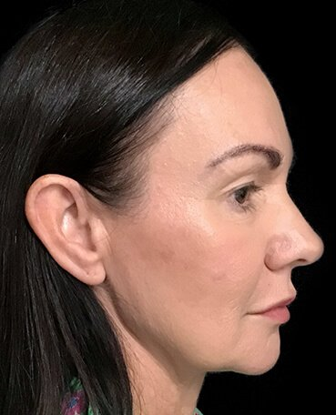 Dr Sharp Mini Facelift S Lift Plastic Surgeon Blepharoplasty Eyelids 3