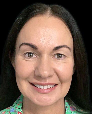 Dr Sharp Mini Facelift S Lift Plastic Surgeon Blepharoplasty Eyelids 6