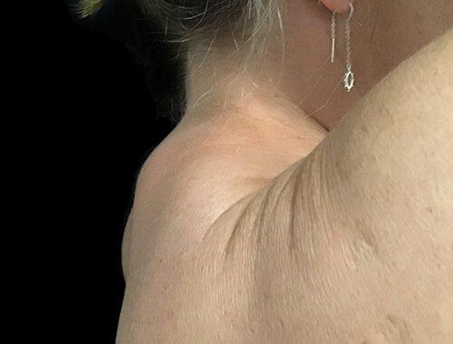 Dr Sharp Plastic Surgeon Before Liposuction Buffalo Hump SN