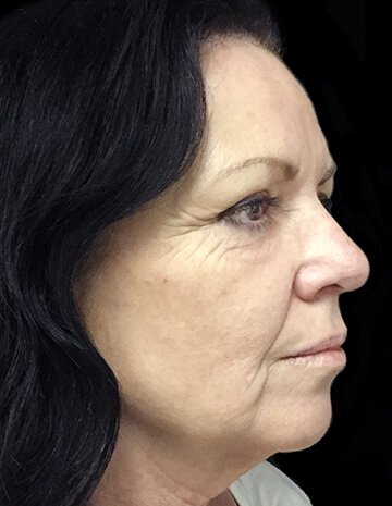 Facelift After Photo Dr David Sharp Plastic Surgeon Before