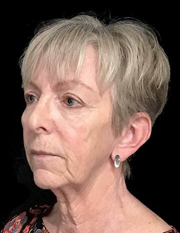 Facelift And Blepharoplasty Surgeon Brisbane 3 AG