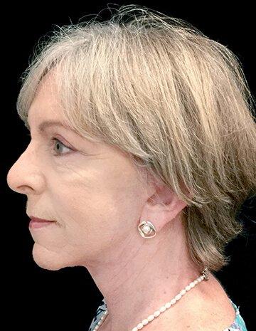 Facelift And Blepharoplasty Surgeon Brisbane 5 AG Copy