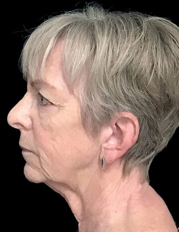 Facelift And Blepharoplasty Surgeon Brisbane 6 AG