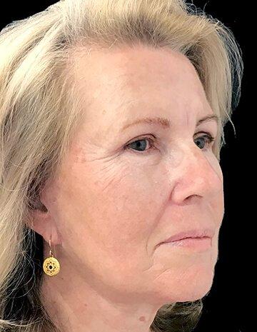 Facelift Blepharoplasty Lipo To Neck MW 5