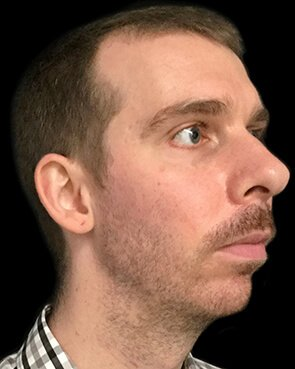 Genioplasty Chin Implant Augmentation Brisbane CB 3
