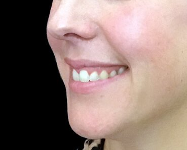 Gummy Smile Injections After The Sharp Clinic HT