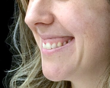 Gummy Smile Injections After The Sharp Clinic HT 2