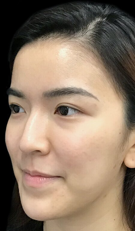 Hydrafacial Clinic Acne Congestion After Photo