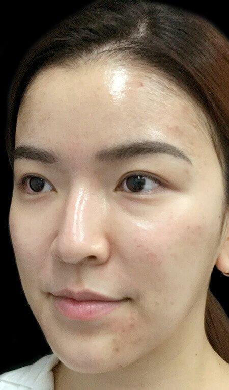 Hydrafacial Clinic Acne Congestion Before Photo