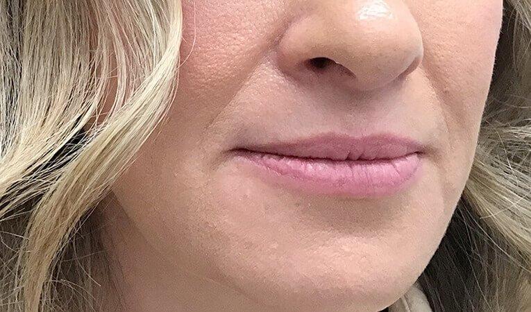 Lip Filler Clinic NB1