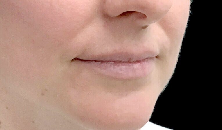 Lip Dermal Filler Clinic Ipswich Brisbane JC 1