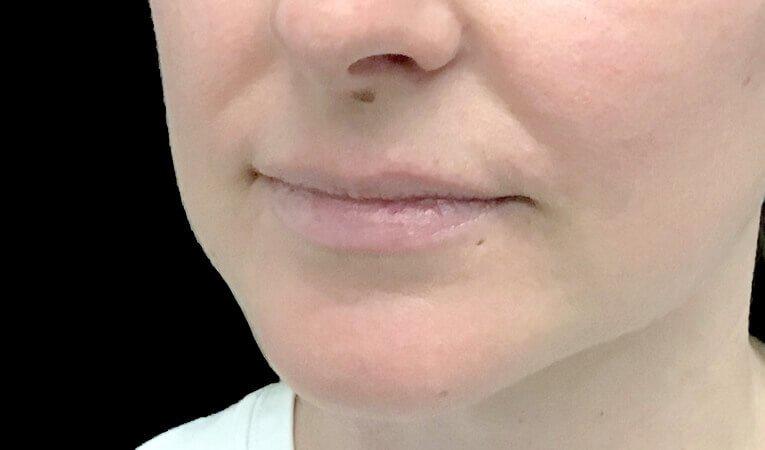 Lip Dermal Filler Clinic Ipswich Brisbane JC 3