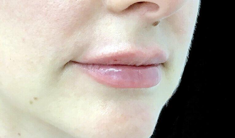 Lip Dermal Filler Clinic Ipswich Brisbane JC After 1 Ml
