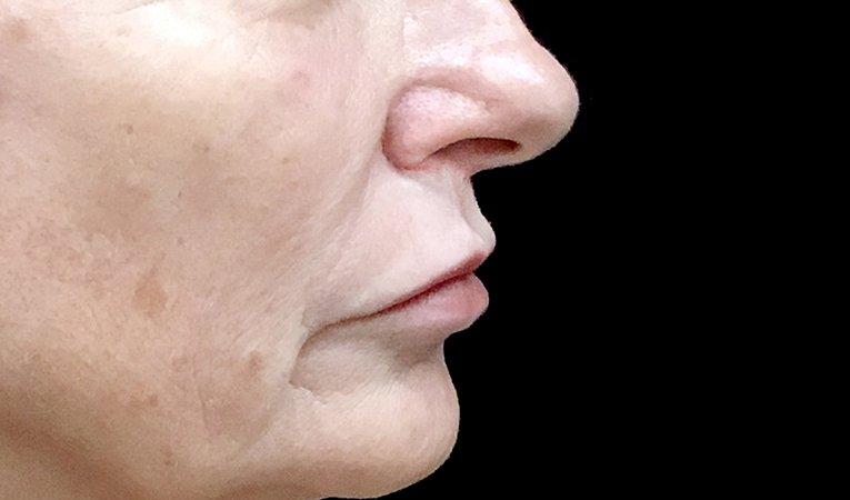 Lip Lift Surgeon Brisbane Ipswich Before And After JC 6