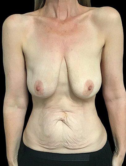Mastopexy Abdominoplasty Mummy Makeover Brisbane Surgeon PJ1