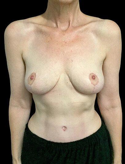 Mastopexy Abdominoplasty Mummy Makeover Brisbane Surgeon PJ 2