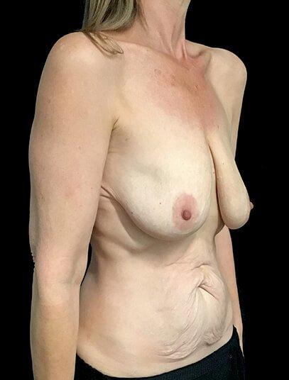 Mastopexy Abdominoplasty Mummy Makeover Brisbane Surgeon PJ 3