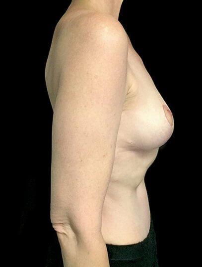 Mastopexy Abdominoplasty Mummy Makeover Brisbane Surgeon PJ 6