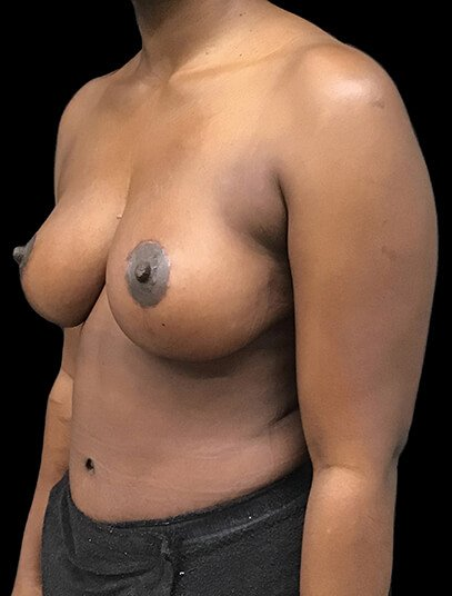 Mummy Makeover Breast Reduction Abdominoplasty AA After